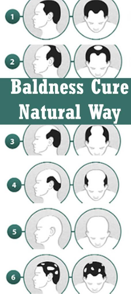 Baldness Cure Natural Way