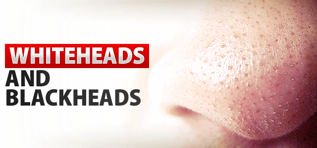 how to get rid of whiteheads quickly