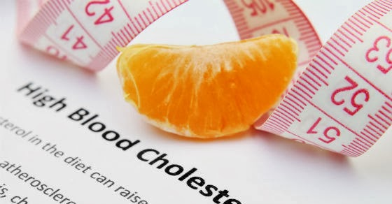 Treatment For High Cholesterol Levels
