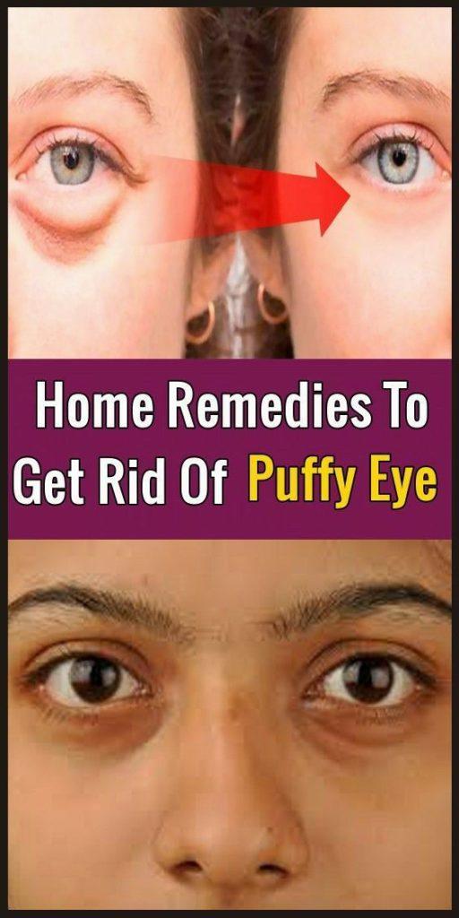 To Get Rid Of Puffy Eyes - AlternativeMedicinehomeremedies.com