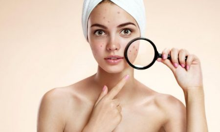 How To Treat & Prevent Hormonal Acne