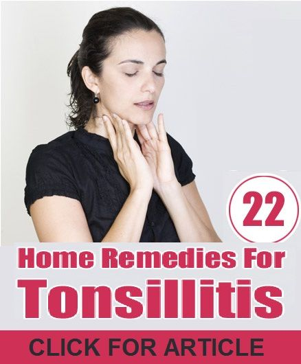How to Treat Tonsillitis Naturally
