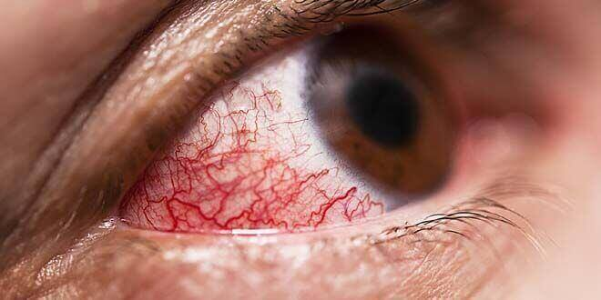 Home Remedies For Sore Eyes