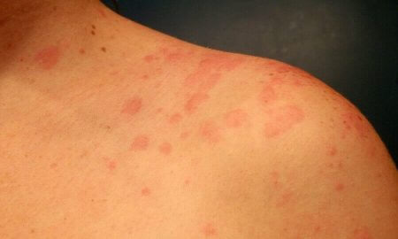 Home Remedies for Urticaria Hives