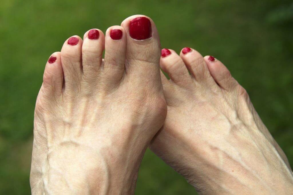 Daily Home Remedies for Bunions
